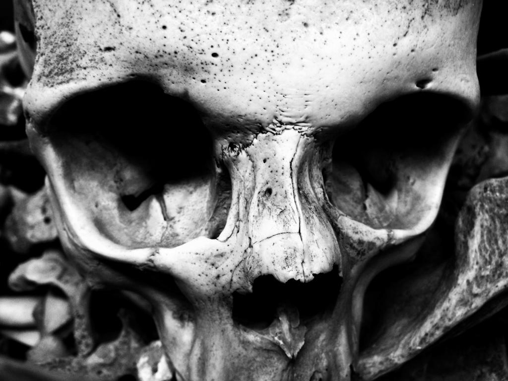 Medical skull shane cashman